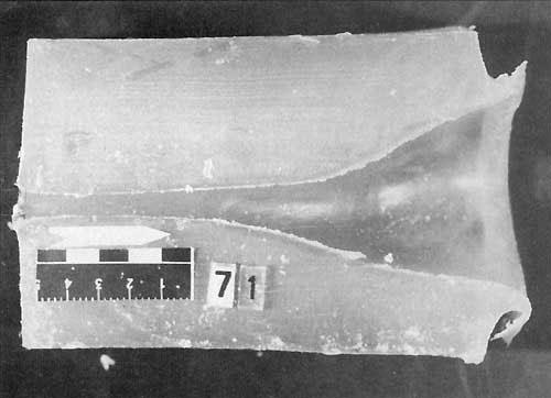 Раневой канал пули калибра 7,62 мм. Длина шейки (участок стабильного движения пули в блоке) 6-7 см.