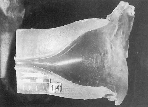 Раневой канал пули калибра 5,56 мм. Длина шейки минимальна, составляет 2-3 см.