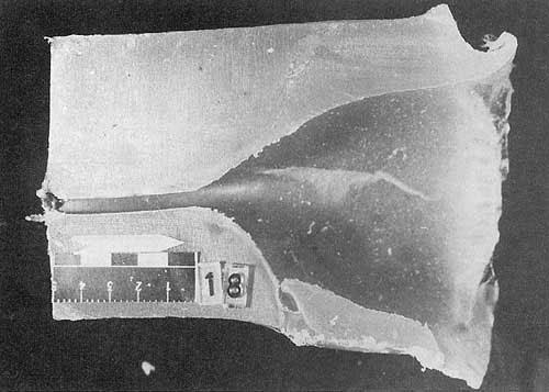 Раневой канал пули калибра 5,45 мм. Длина шейки около 5 см.