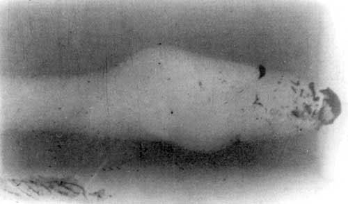 Рис 2. Импульсная рентгенограмма. Взрывоподобная фрагментация 5,56-мм пули патрона М193 в желатиновом блоке (дальность стрельбы -10м, входное отверстие слева).