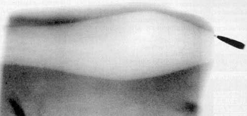 Рис 3. Импульсная рентгенограмма. Опрокидывание 5,45-мм пули патрона 7Н6 в желатиновом блоке. Деформация пули отсутствует (дальность стрельбы -10 м, входное отверстие слева).