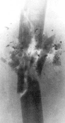 Рис 4. Рентгенограмма ранения бедра 5,56-мм пулей патрона М193. Огнестрельный многооскольчатый перелом бедренной кости. В области перелома -многочисленные осколки фрагментированной пули (дальность стрельбы - 10м).