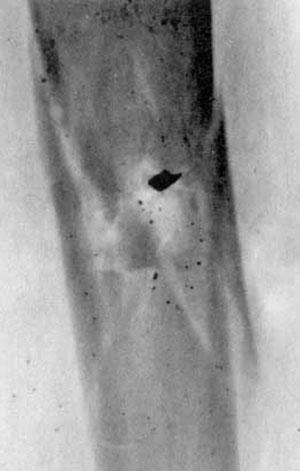 Рис 5. Рентгенограмма ранения бедра 5,45-мм пулей патрона 7Н6. Огнестрельный многооскольчатый перелом бедренной кости. В области перелома - характерный треугольный фрагмент носика пули (дальность стрельбы - 10м).