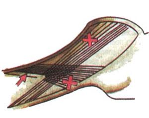 Наиболее характерные ошибки при нанесении насечки обозначены красными крестами; стрелкой обозначено место сближения рядов, крестами их расползание